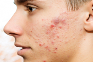 Acne Png - Acne Png (96+ images in Collection) Page 3