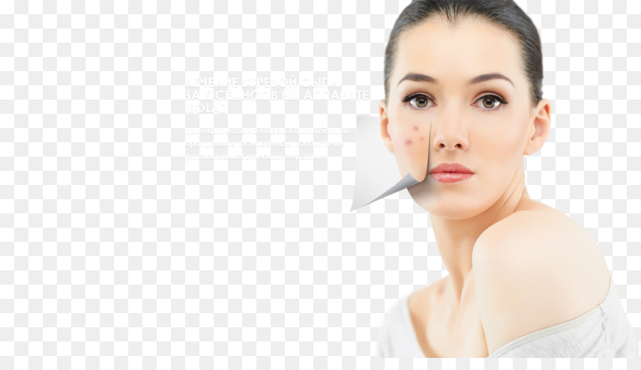 Acne Png - acne png download - 1200*670 - Free Transparent Skin Care png ...