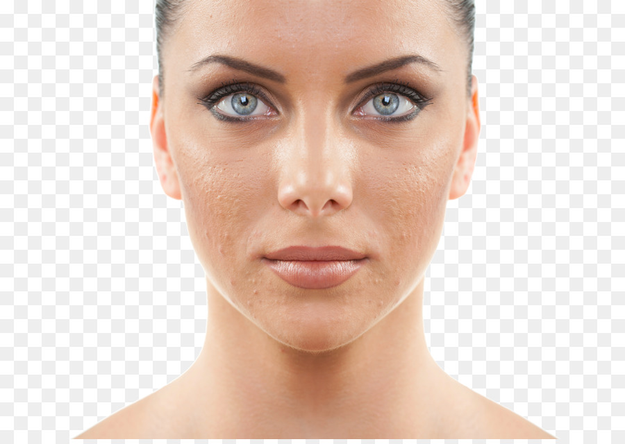 Acne Png - acne png download - 720*633 - Free Transparent Chemical Peel png ...