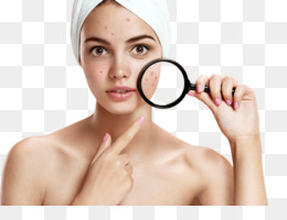 Acne Png - Acne Scars PNG and Acne Scars Transparent Clipart Free Download.