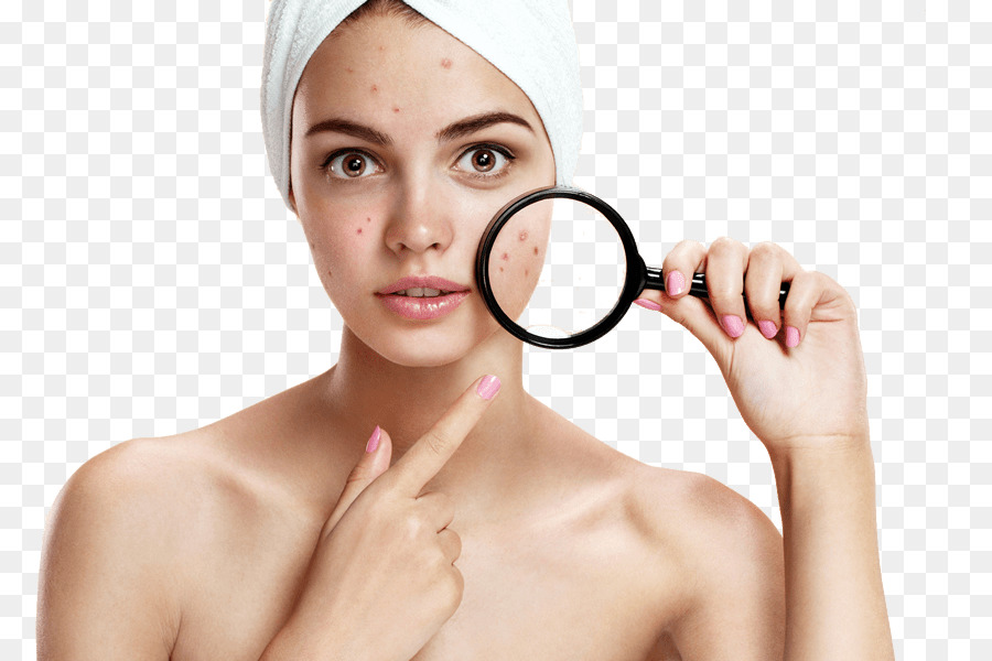 Acne Png - Acne Scars png download - 835*600 - Free Transparent Skin png ...