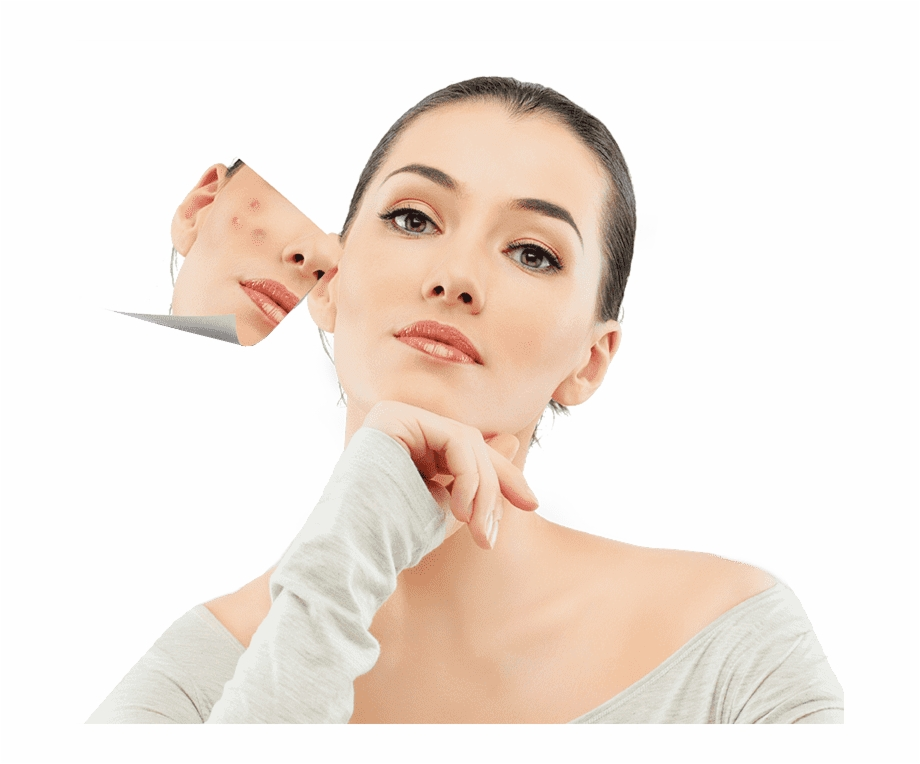 Acne Png - Acne Solutions - Лечение Акне Free PNG Images & Clipart Download ...