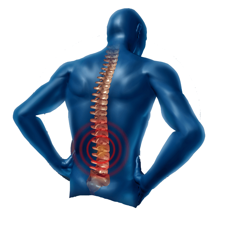 Back Pain Png Free Back Pain Png Transparent Images 15788 Pngio