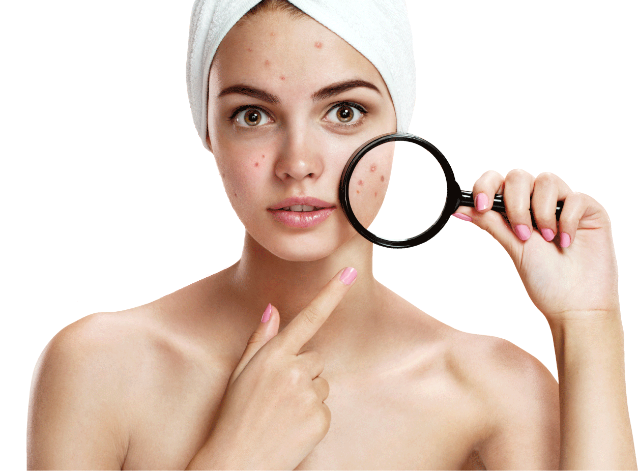 Acne Png - Download Acne Effect Peroxide Therapy Powder Benzoyl Skin Clipart ...
