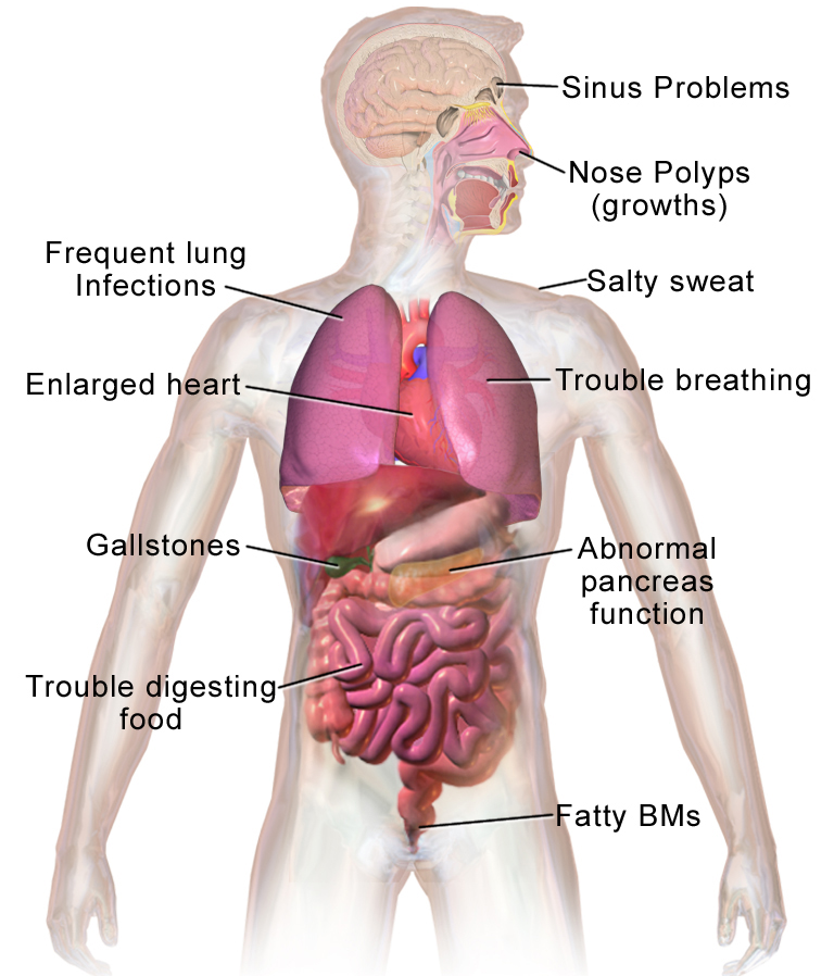Cystic Fibrosis Png - File:Blausen 0286 CysticFibrosis.png - Wikimedia Commons