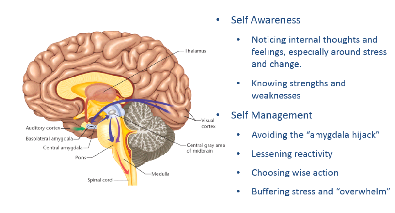 Amygdala Hijack Png - Impact of Emotional and Social Intelligence | Guiding Leaders and ...