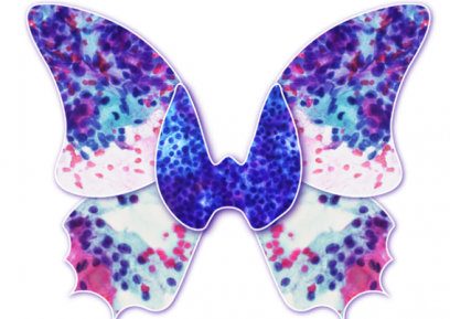 Thyroid Cancer Butterfly Png Free Thyroid Cancer Butterfly Png
