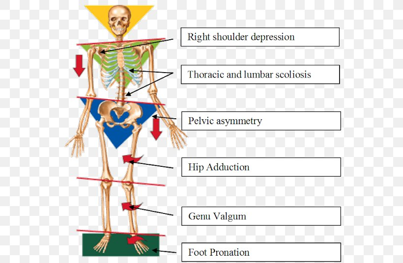 Patellofemoral Pain Syndrome Png - Knee Pain Flat Feet Foot Patellofemoral Pain Syndrome, PNG ...
