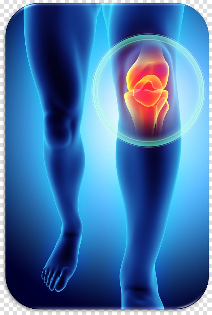 Patellofemoral Pain Syndrome Png - Knee pain Patellofemoral pain syndrome Plica syndrome Injury, knee ...