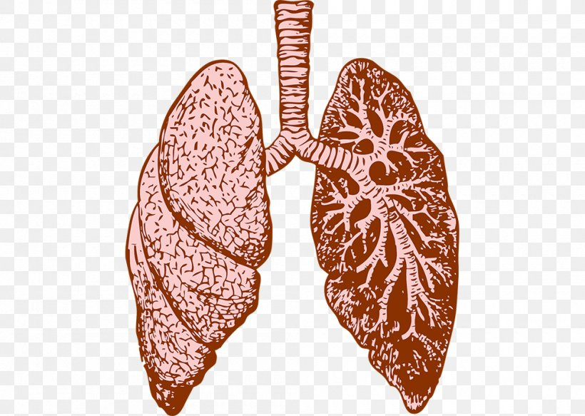 Cystic Fibrosis Png - Lung Cystic Fibrosis Idiopathic Pulmonary Fibrosis Therapy, PNG ...