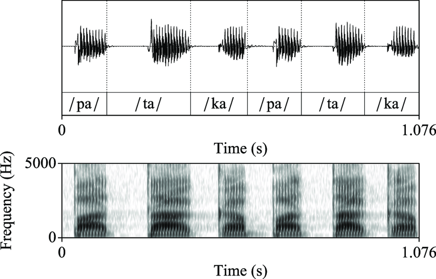 Pâté Png - Speech waveform and spectrogram of a 35 years old normophonic ...